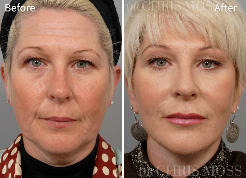 Facelift Melbourne Before and After (front) - Dr Chris Moss 1