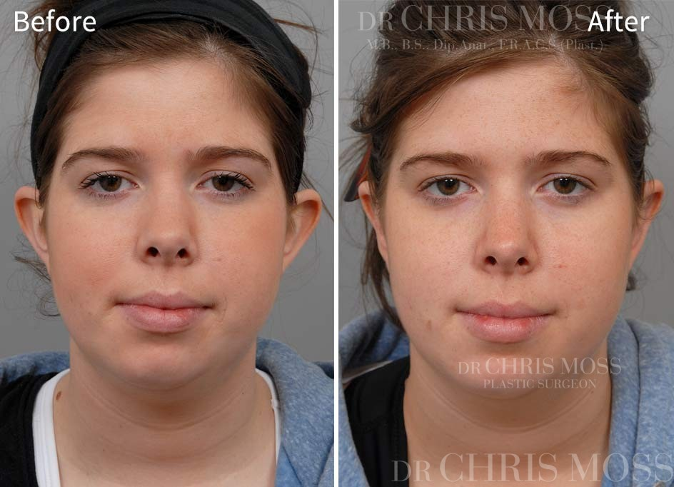 Otoplasty Before and After (front) - Dr Chris Moss 3